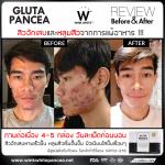 Gluta Pancea Reviews รีวิวผู้ใช้ กลูต้าแพนเซีย