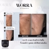 ใครรู้บ้างว่า Worra คุณแม่ตั้งครรภ์ ก็ใช้ได้ ให้นมบุตร ก็ใช้ได้ ปลอดภัย 100% ครีมนุ่น วรนุช วอร่า